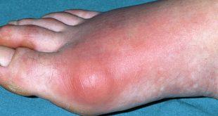 biện pháp tự nhiên từ nhàu giúp giảm đau do gout, bien phap tu nhien dieu tri benh Gout